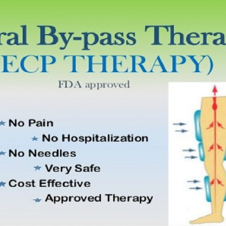 natural-by-pass-therapy-eecp-therapy-1-638